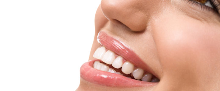 Professional Teeth Whitening in Dallas